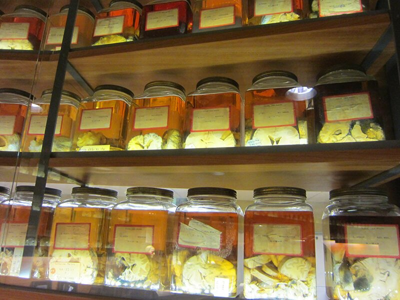 Cushing Brain Collection